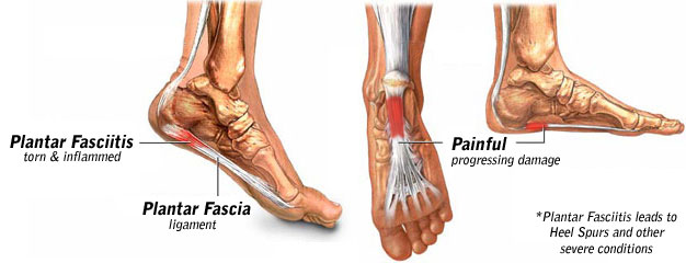 Plantar Fasciitis Description and Treatment